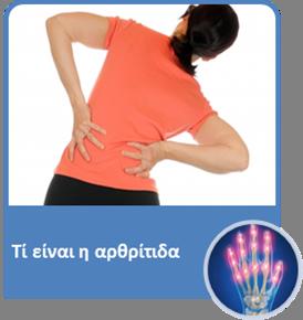 01arthritis
