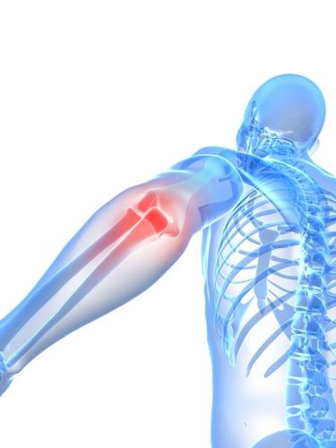 osteoporosis1 73096141