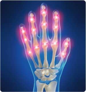 arthritis01