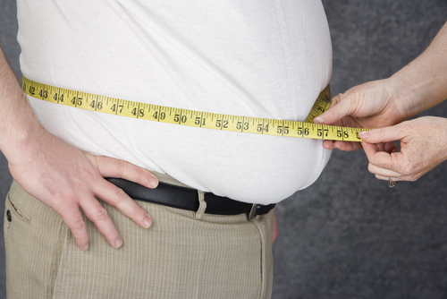 obesity 110873579